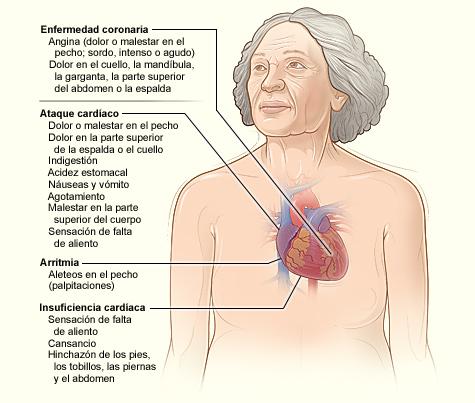 Otros síntomas de enfermedades cardiacas